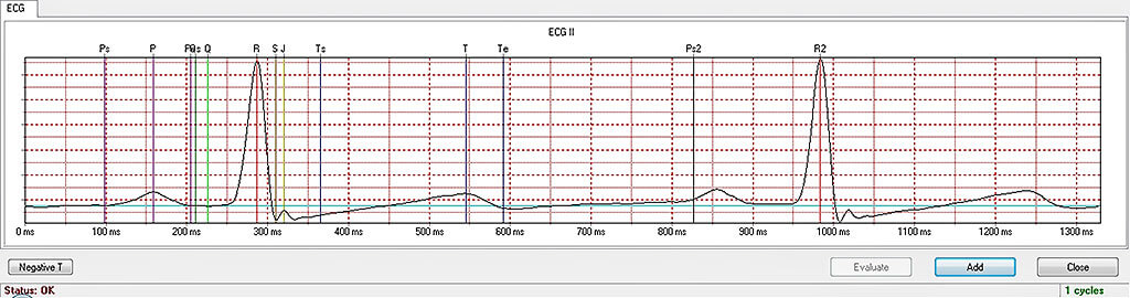 Cycle-based ECG analysis with automatic evaluation of the parameters