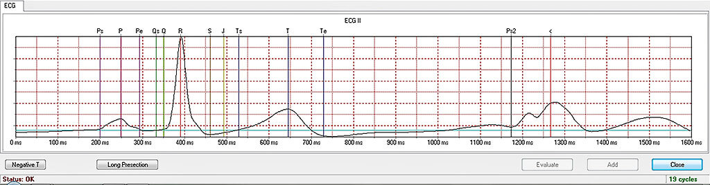 Averaged ECG analysis from cycles selected by the user