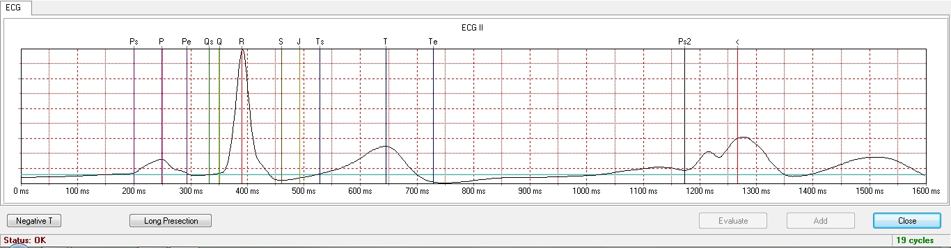 Automatic averaged ECG analysis
